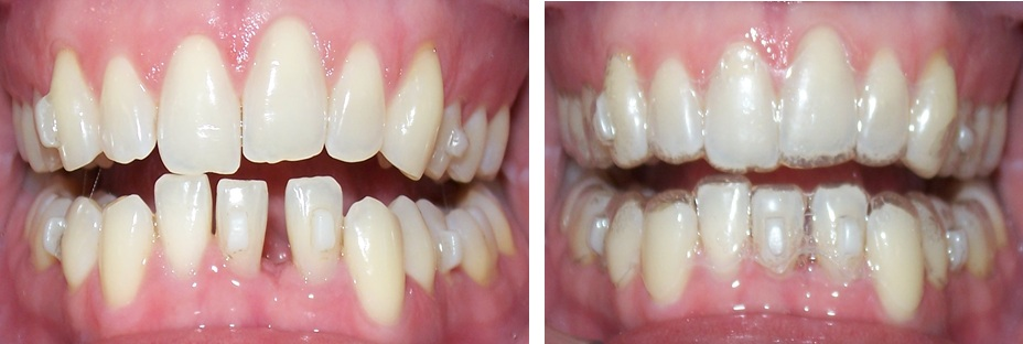 how to clean invisalign trays